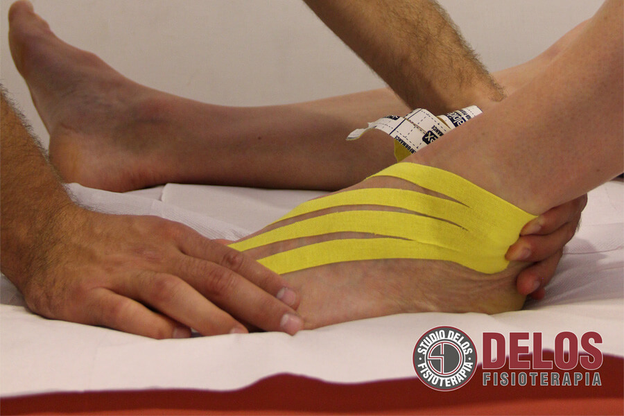 Kinesio taping come si applica